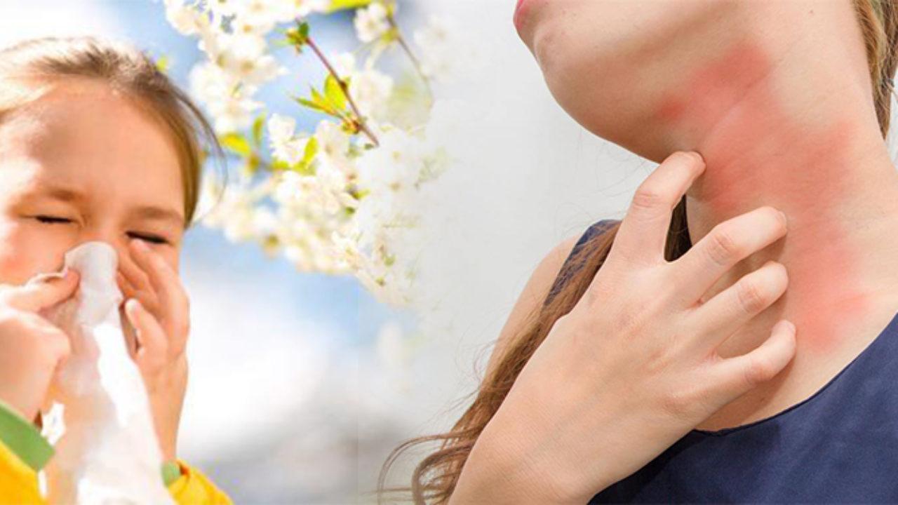 remedios para la alergia al polen