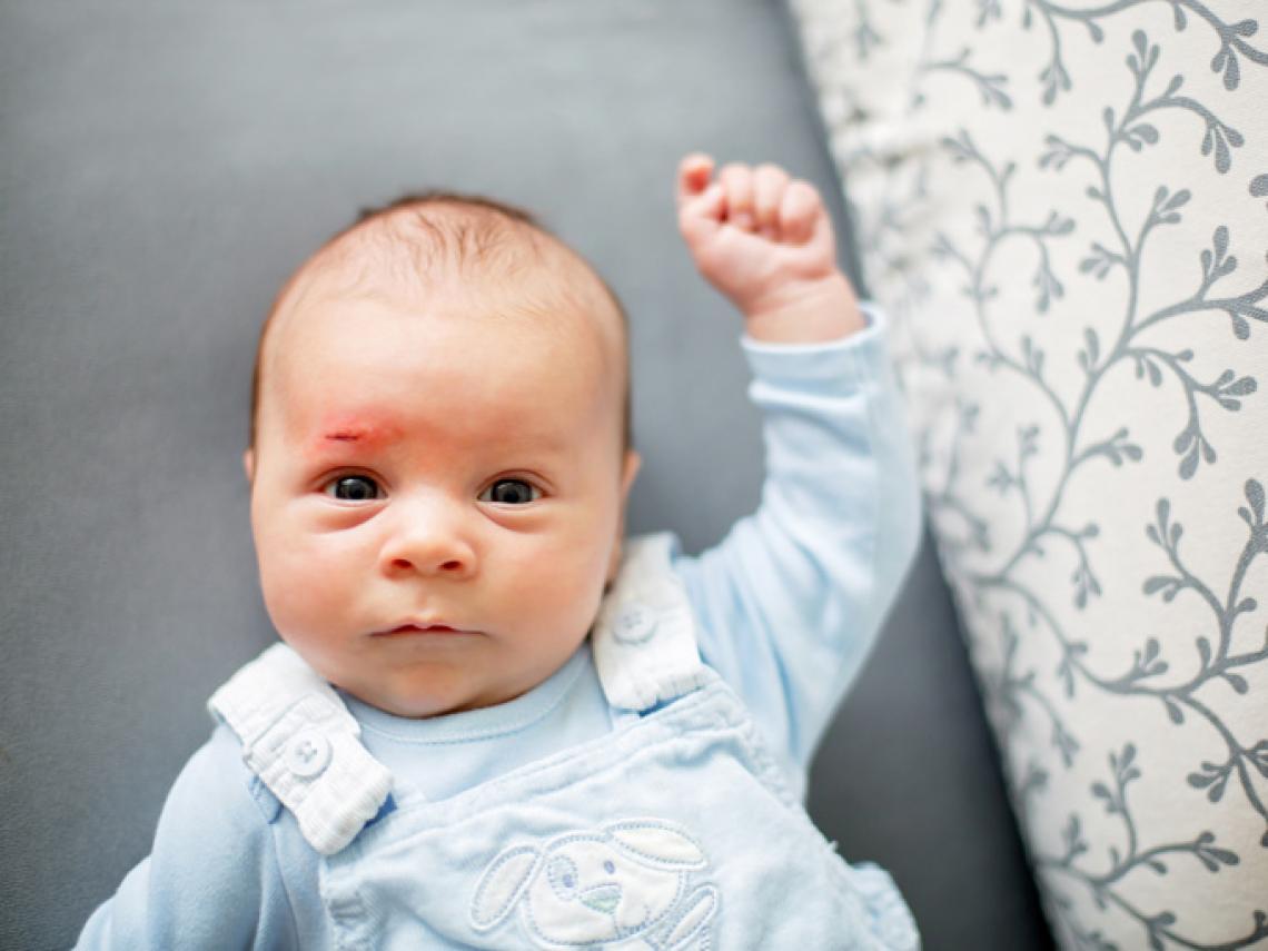 como quitar un chichon de la frente de un bebe